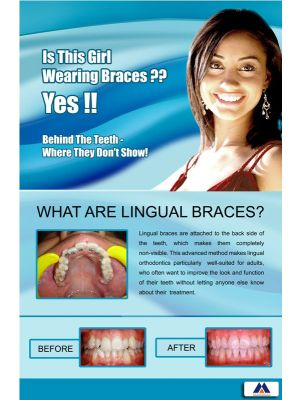 Poster English Orthodontic Lingual Braces (Paper) PO-038