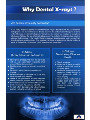 Poster English Why Dental X-ray (Paper) PO-041