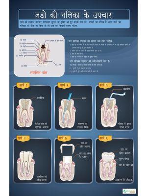 Poster Hindi  जड़ो की नलिका के उपचार - 002