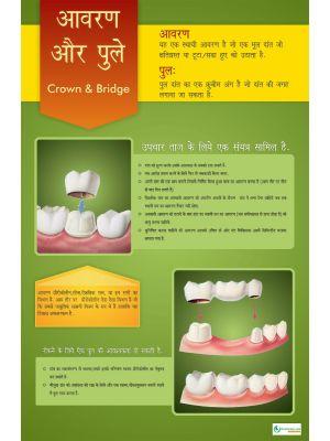Poster Hindi आवरण और पुले - 006
