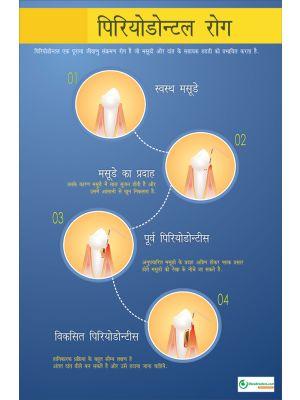 Poster Hindi पिरियोडोन्टल रोग - 024