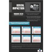 Poster English Dental Impaction - 034